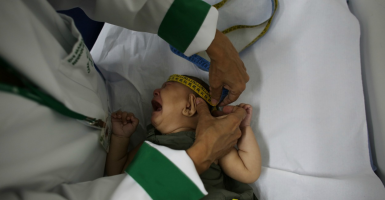 A baby born with microcephaly in Brazil. (Photo: Nacho Doce/Reuters/Newscom)