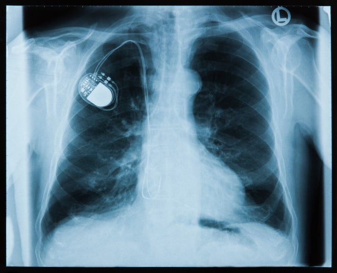 Pacemaker. (Photo: Getty Images)
